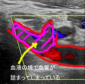 血栓閉鎖2